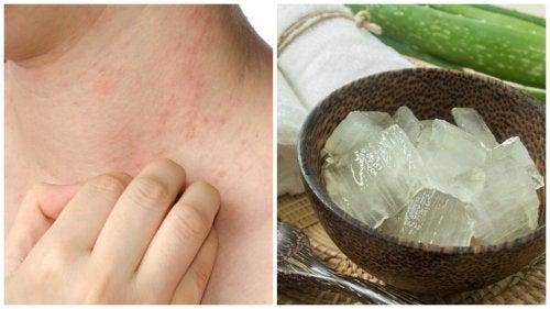 Alergia causada pelo calor: 7 soluções eficazes