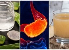 Remédios naturais contra a azia