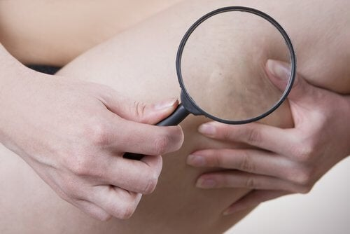 Celulite por causa do uso de roupas apertadas