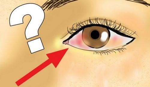 Descolamento de retina: o que é, causas e prevenção
