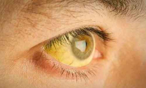 Olhos amarelados