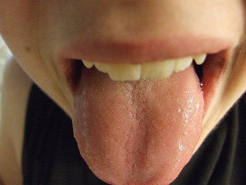 Bolhas na língua