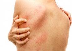 Remédios caseiros simples e eficazes contra a urticária