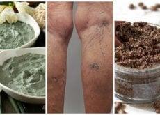 Remédios naturais para combater as varizes