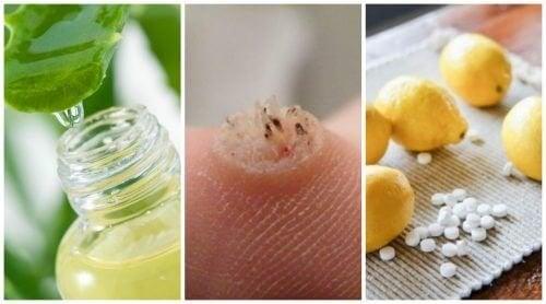 Remédios naturais contra as verrugas