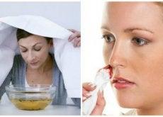 7 soluções caseiras eficazes contra as hemorragias nasais