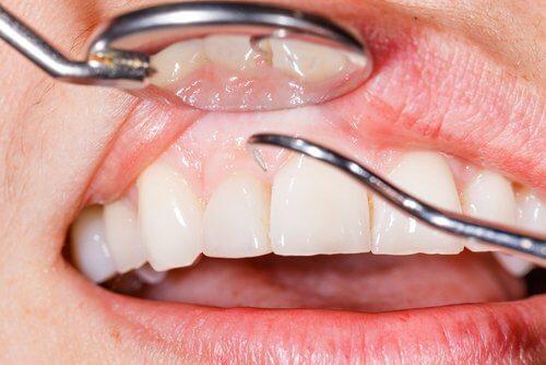 13 razões pelas quais as gengivas sangram quando você escova os dentes