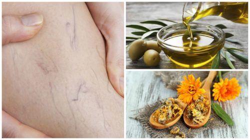 Combata as varizes com este tratamento de azeite de oliva e calêndula