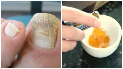 Combata os fungos nas unhas com um tratamento de cúrcuma
