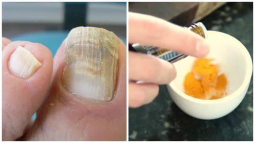 Combata os fungos nas unhas com um tratamento natural de cúrcuma