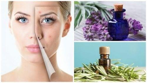 Limpe a acne da pele com estes 6 óleos essenciais