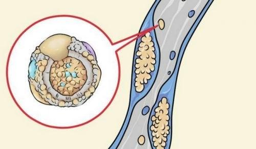 6 estratégias para reduzir o consumo de colesterol desde sua cozinha