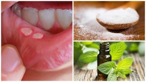 Acelere a recuperação das aftas com estes 7 tratamentos caseiros