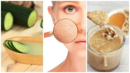 Poros dilatados: 5 remédios naturais para fechá-los