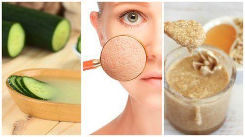 Feche os poros dilatados com estes 5 remédios naturais