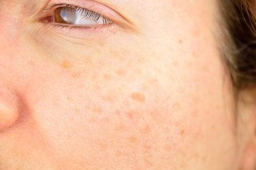 Manchas na pele do rosto