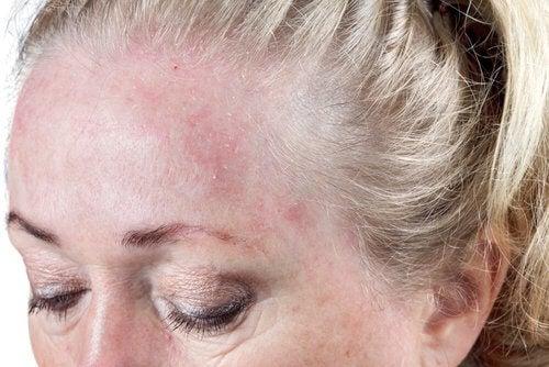 Recomendações para evitar a dermatite