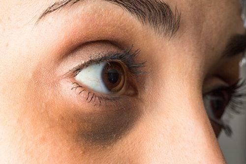 Rosto com olheiras