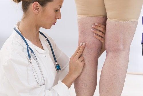 Retenção de líquidos nas pernas de paciente com problemas nos rins