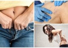 9 problemas de usar roupa muito apertada