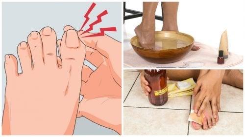 Unhas encravadas: 6 remédios caseiros para combatê-las