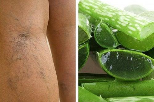 Aloe vera para melhorar a circulação das pernas