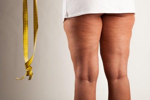 Pernas com lipedema