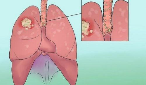 Câncer de pulmão: sinais para não ignorar