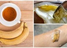 Cascas de banana: 5 formas de usá-las como remédio natural
