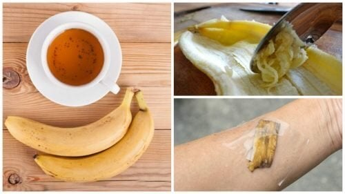 5 formas de usar as cascas de banana como remédio natural