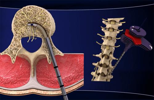 Descubra o novo tratamento para dor lombar crônica