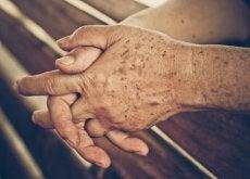 4 remédios caseiros que evitam as manchas da idade