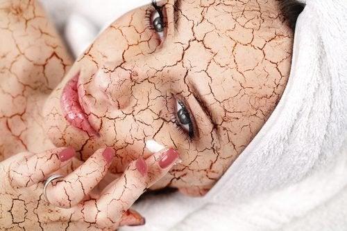 Como evitar que o rosto fique com a pele seca