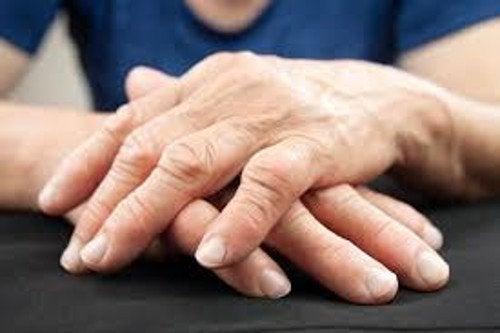Mãos deformes por causa de um pH ácido