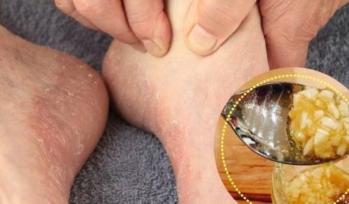 6 remédios naturais que ajudam a curar o pé de atleta