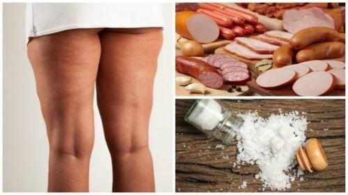 A celulite: 7 alimentos para serem evitados