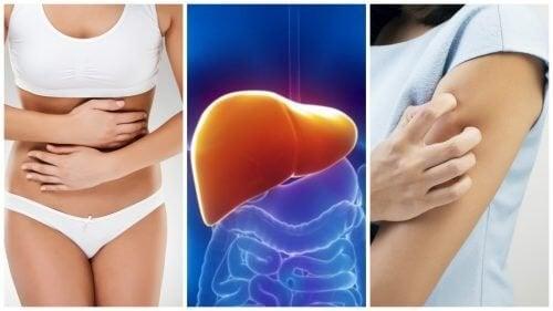 8 sintomas que surgem quando seu fígado está sobrecarregado de toxinas