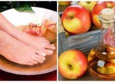 6 benefícios de mergulhar seus pés em vinagre