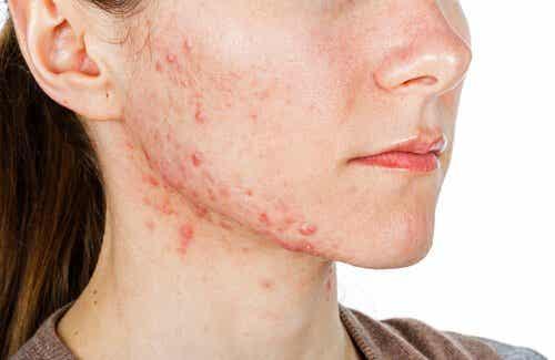 Tratamentos internos para a acne