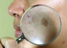 Melasma: 7 tratamentos caseiros para combatê-lo