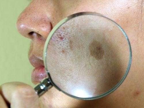7 tratamentos naturais para o melasma