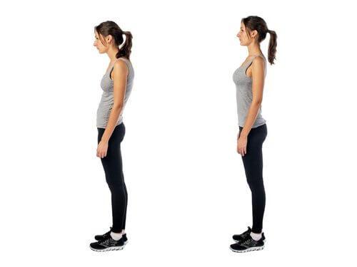 Má postura pode causar dor nas costas