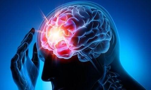 7 dicas para prevenir um aneurisma