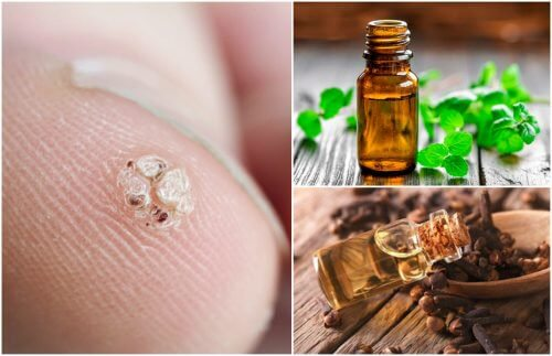 7 óleos essenciais que ajudarão a combater as verrugas
