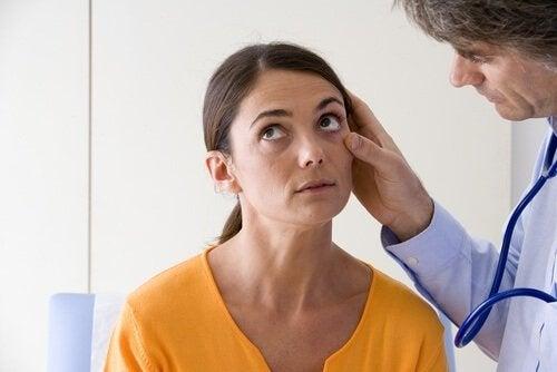 Mulher com sinais de déficit de ferro nos olhos