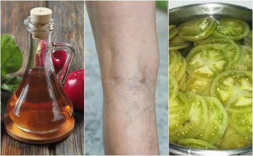 Combata as varizes com um tratamento caseiro de vinagre e tomate verde