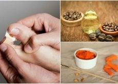 Unheiros: 8 tratamentos naturais para eliminá-los em casa