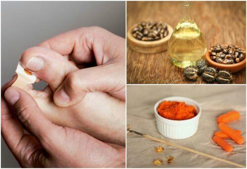 Elimine os unheiros com estes 8 tratamentos naturais