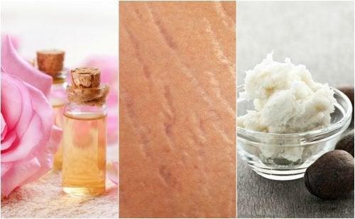 Reduza o aspecto das estrias com estes 4 tratamentos naturais