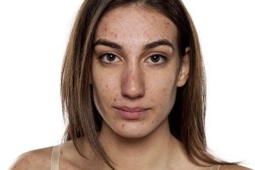 Você sabia que o Vick Vaporub pode amenizar a acne?